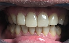 discolored teeth after