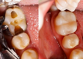 Before and after tooth-colored filling placement