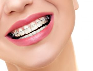 A person wearing Six Month Smiles braces.