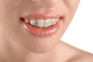 Woman smiling with clear braces